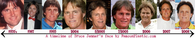 Timeline showing the changes in Bruce's appearance since the 1970s (image courtest of famousplastic.com)
