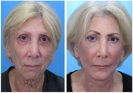 Laser facelift without surgery